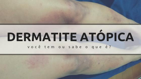 Dermatite Atópica - você tem ou sabe o que é?